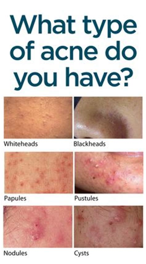 what is the cause for acne picture 9