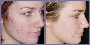 european acne cure picture 3