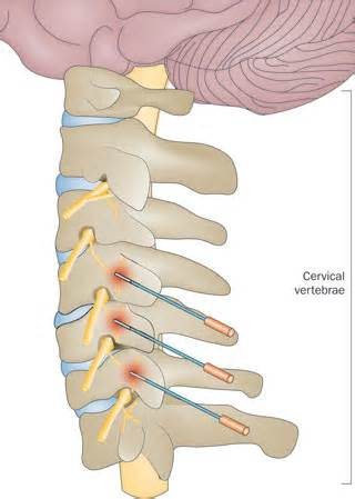 cervical and lumbar facet joint blocks picture 4