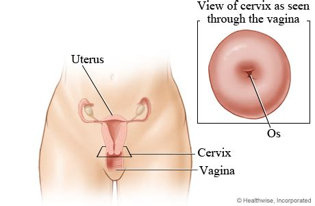 contact dermais near vaginal opening picture 3