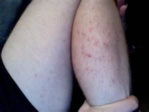 mold skin rashes picture 11