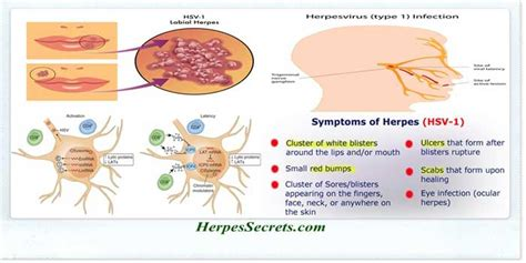 what symptoms can you get from herpes picture 2