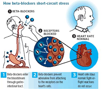 Blood pressure meds side effects picture 3