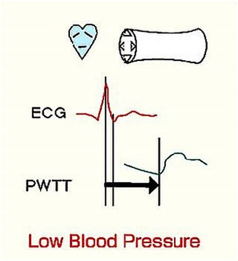 Articles on low blood pressure picture 11