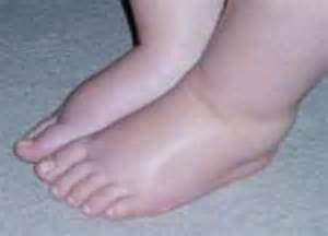 Swollen ankles medical symptoms blood pressure picture 5