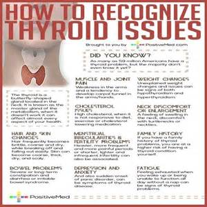 hypothyroid and lupus picture 3