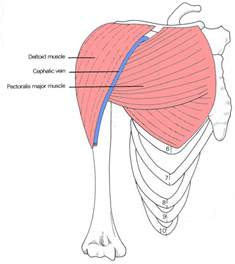 deltoid muscle injections picture 7