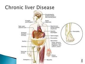 alcoholic liver diseases picture 5