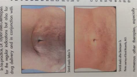 stretch mark removal florida picture 1