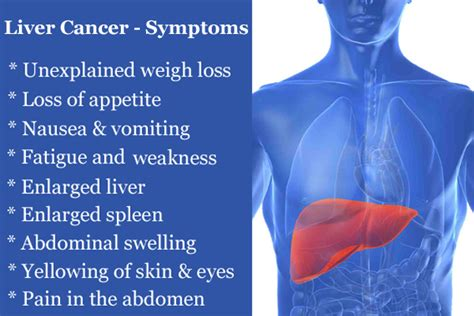 do you have pain with liver cancer picture 8