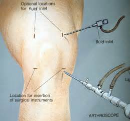 surgery minuscus tear knee joint picture 9