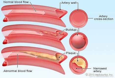 how to lower triglycerides and blood pressure picture 5