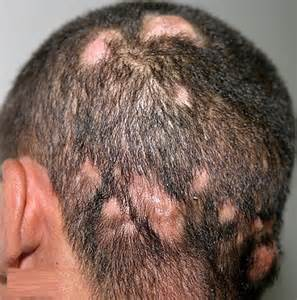 dried calcium on the hair and scalp picture 2