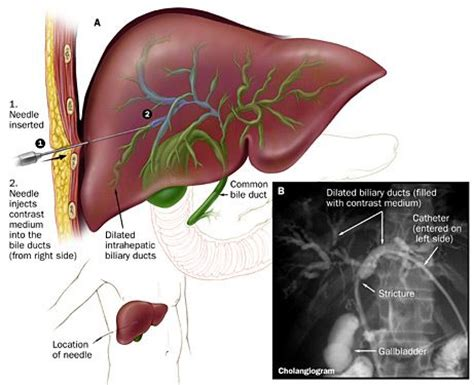 gall bladder cancer alcohol treatment picture 10