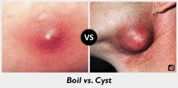 what is a boil picture 17