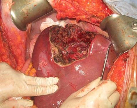 liver hemangioma removal picture 3