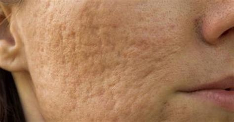 rosacea skin care picture 6