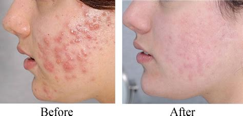 best acne medication picture 2