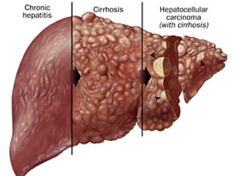 what are common diseases of the liver picture 5
