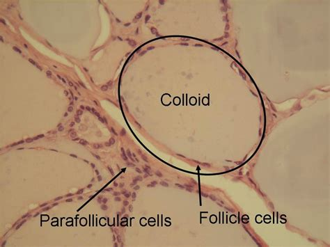 colloid thyroid picture 5