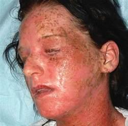 allergic reaction symptoms hair dye picture 7