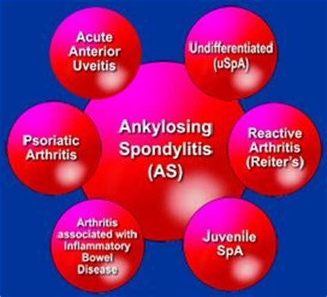 homeopathic doctor who treats ankylosing spondylitis in phoenix picture 4