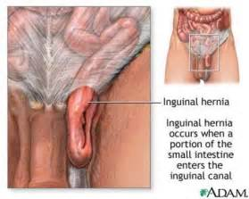 dose a hernia effect the penis picture 9