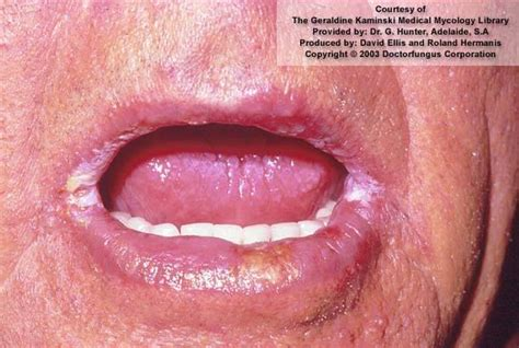 vaginal redness from yeast infection picture 5