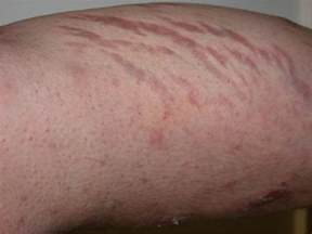 steroids side effects in skin picture 1