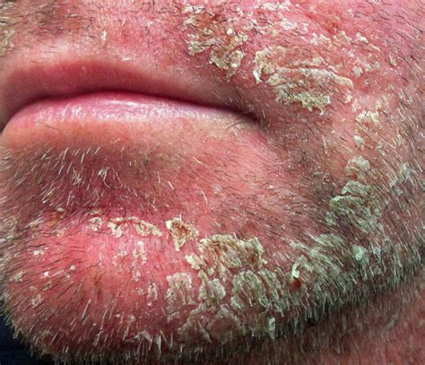 face skin rash picture 5