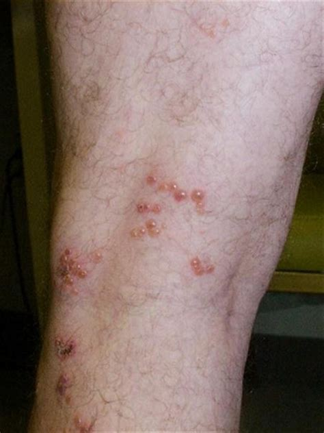 herpes rashes picture 9