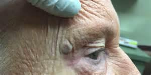 skin cancer burst picture 3