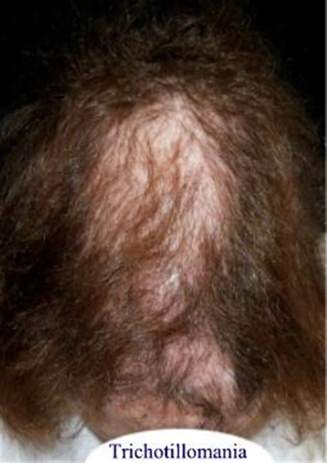causes of hair pulling picture 10