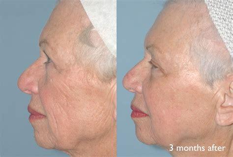 skin resurfacing picture 5