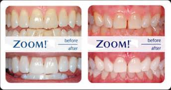 before and after h whitening picture 10