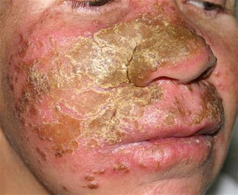 yeast infections men picture 1