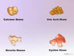bladder stones and uric acid picture 5