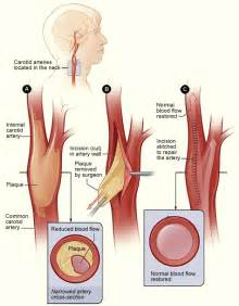narrowing the arteries in brain herbal solutions picture 9