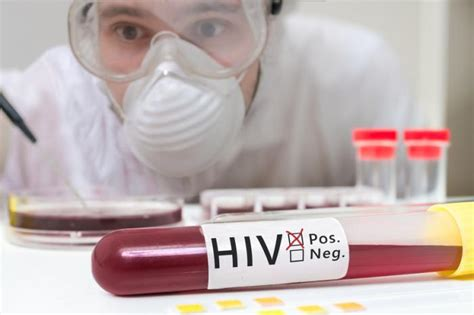 sintomas ng hiv positive picture 9
