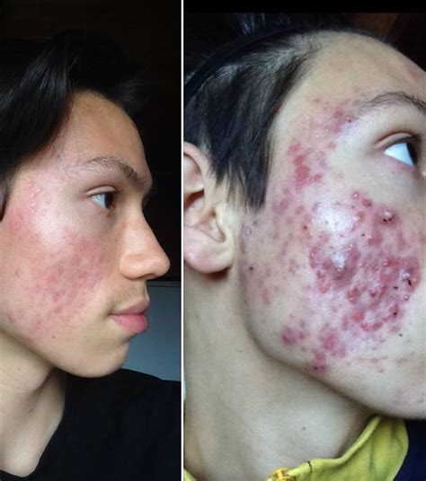 home acne treatment picture 2