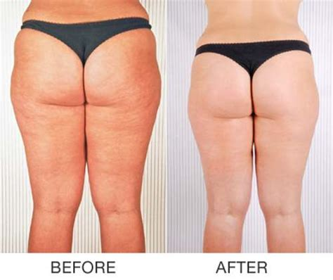 tripollar pose before and after picture 1