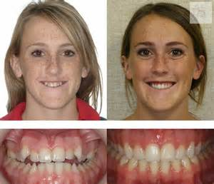 before after pic picture 10