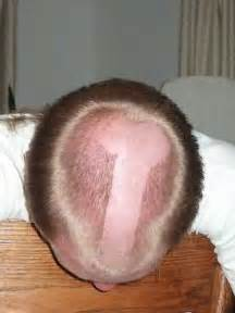head penis pictures picture 2