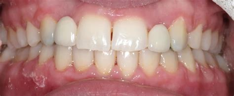 maryland teeth whitening picture 10