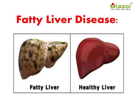 fatty cirrhosis of the liver picture 9