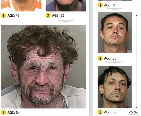 meth and drugs and physical and aging picture 12