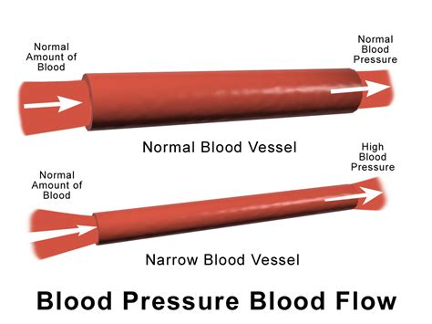 High blood pressure and low blood pressure picture 9