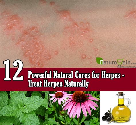 natural cures for herpes picture 3