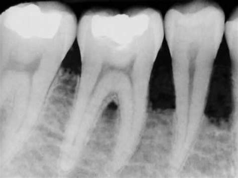 coffee and tooth bone loss picture 7