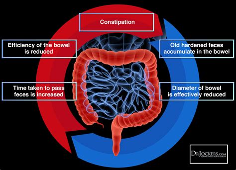 constipation and colon diseases picture 19